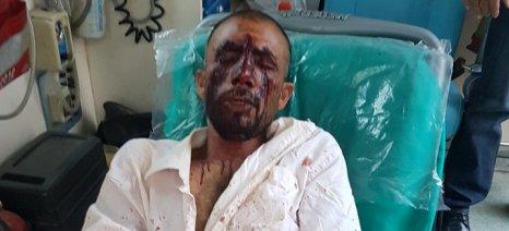 Ασπρόπυργος: Δολοφονική επίθεση κατά εργατών γης σε θερμοκήπια με μαχαίρια και σιδερογροθιές