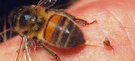 Πως να αντιμετωπίσετε τσίμπημα από σφήκα, μέλισσα, σκορπιό